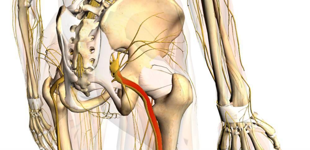 Поражение седалищного нерва: диагностика, признаки, лечение — онлайн-диагностика