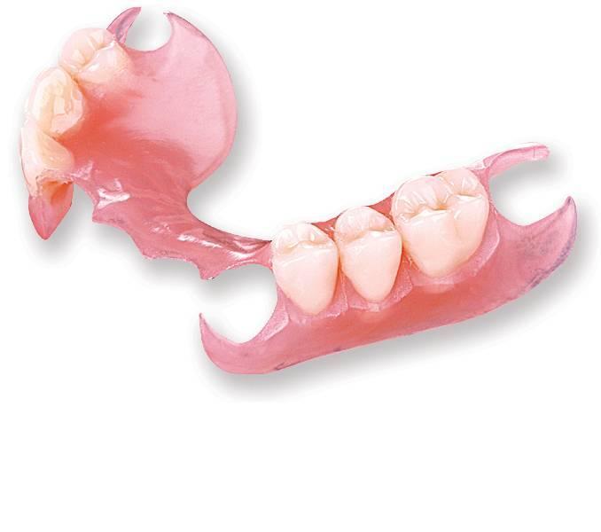 Зубные нейлоновые протезы: описание и фото