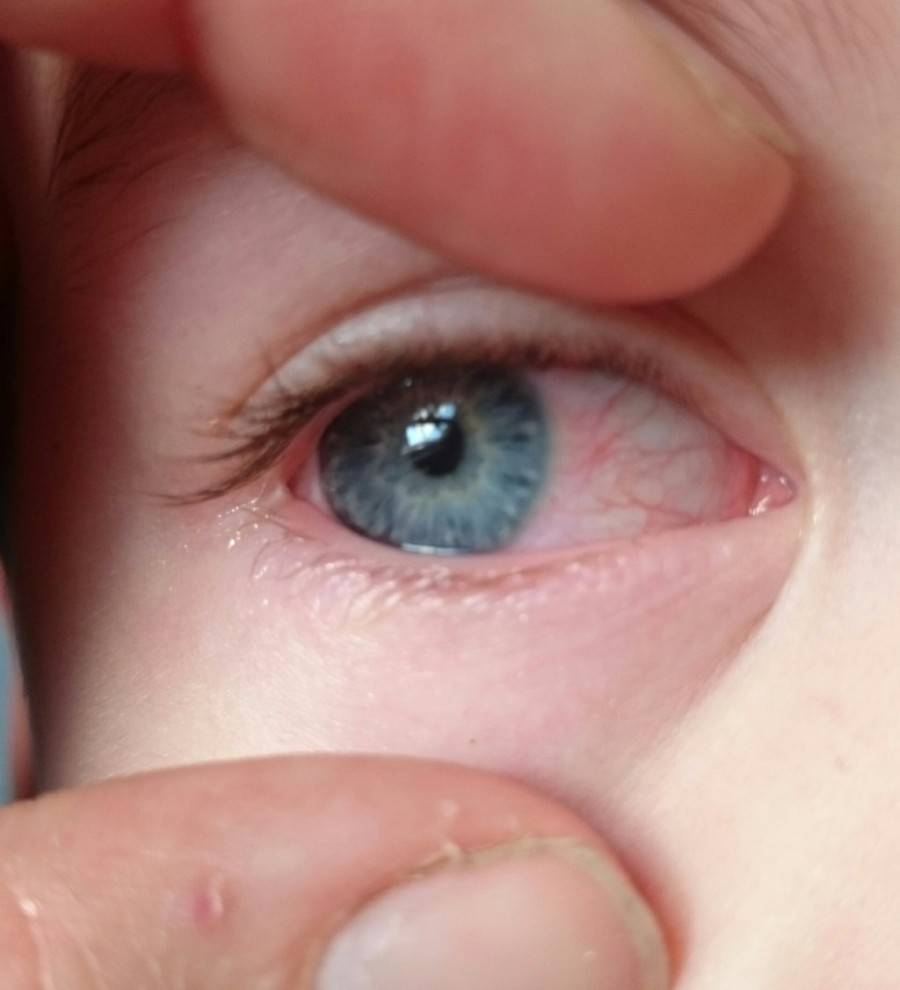 красные внешние уголки глаз у ребенка