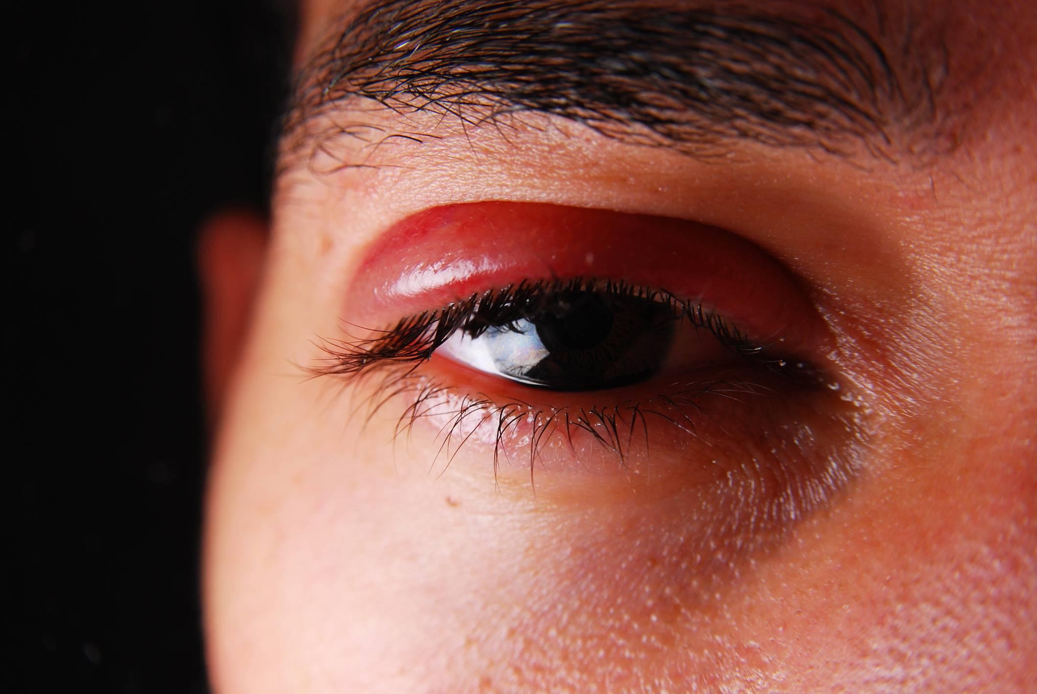 Один глаз красный слезится и болит