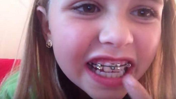 больно ставить брекеты на зубы