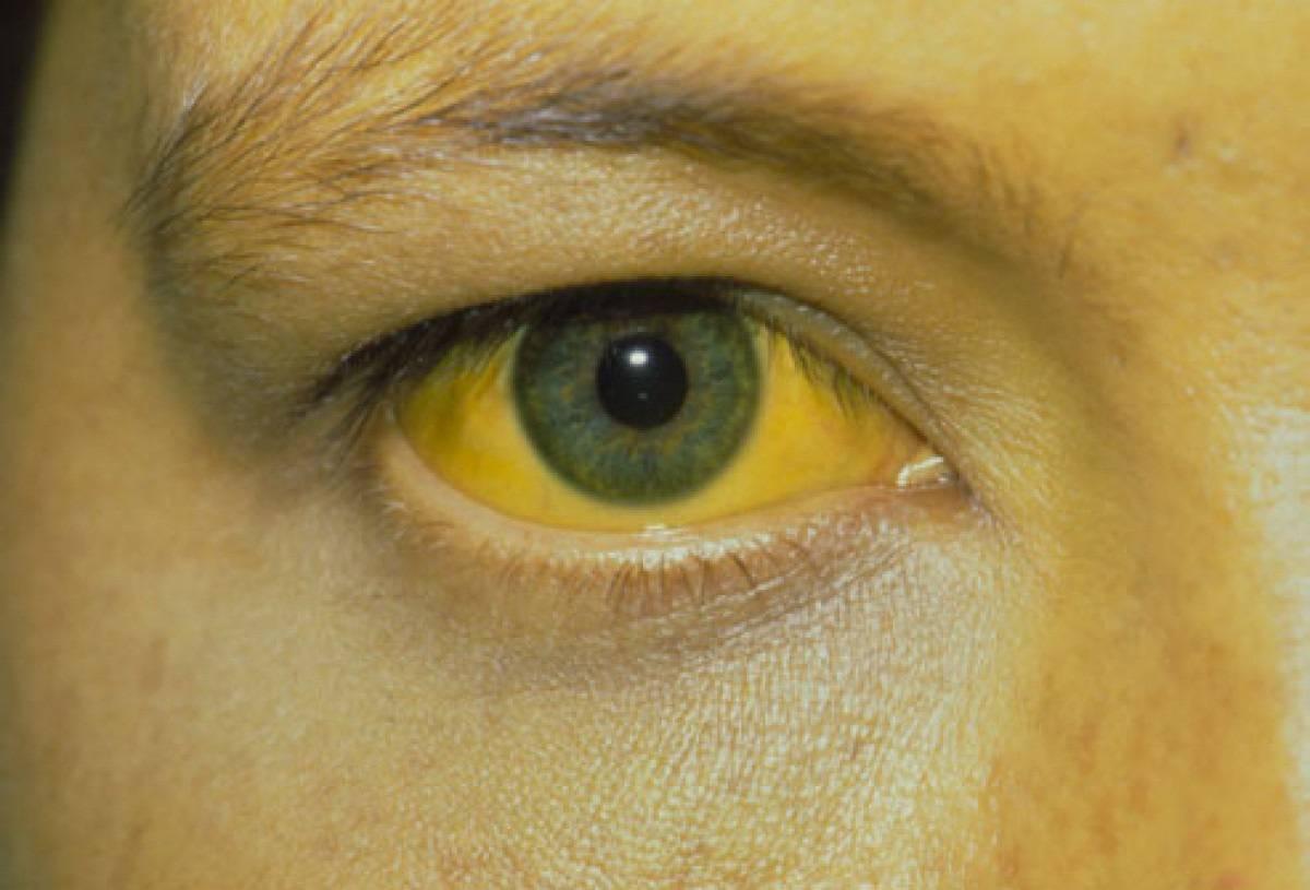 заразна ли желтуха