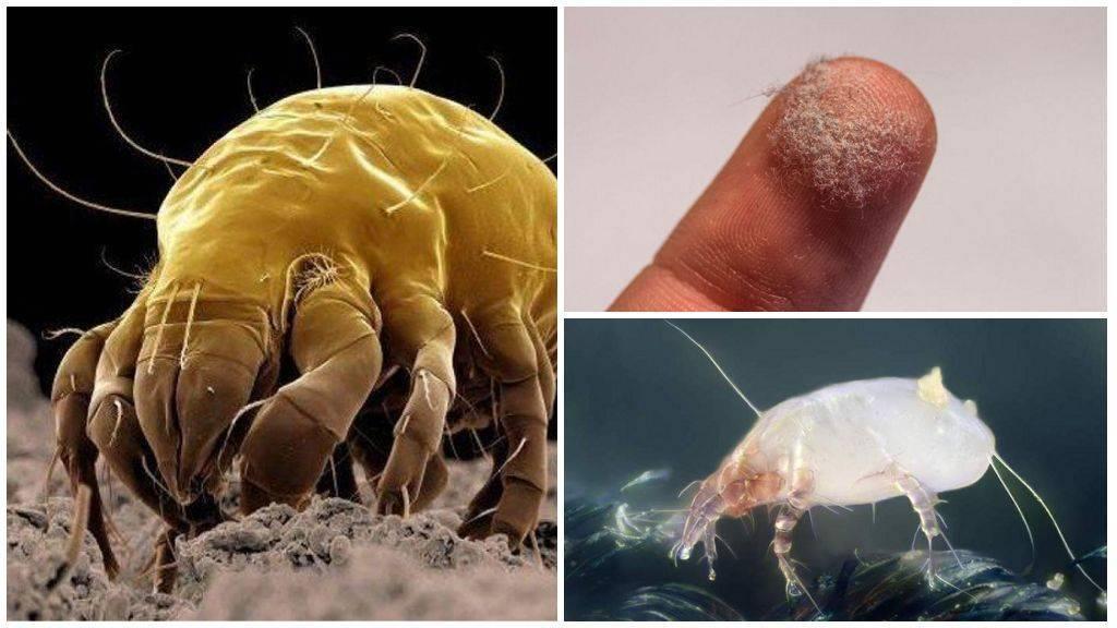 аллергия от паразитов симптомы