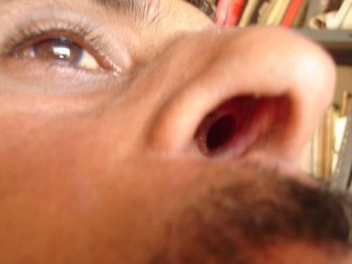 Лечение сухости и болячек в носу мазями