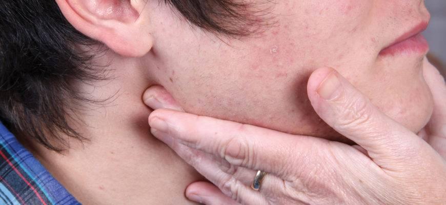 Болят лимфоузлы на шее за ушами