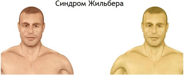 Синдром жильбера - симптомы и лечение