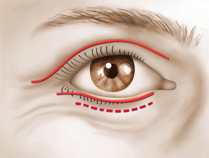 конъюнктивный мешок глаза