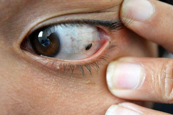 белое пятно на белке глаза