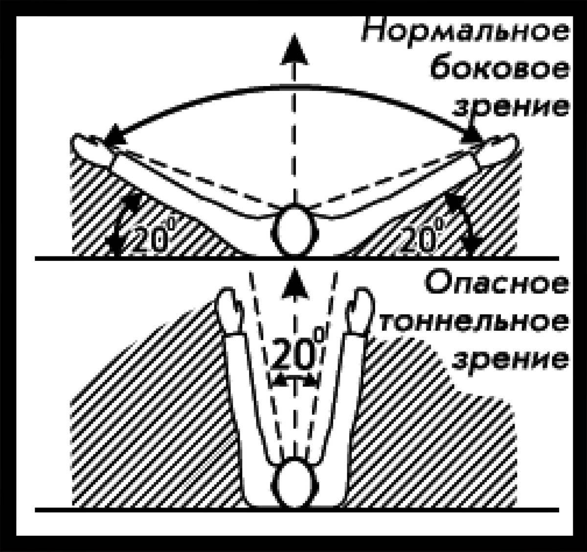 Нарушение периферического кровообращения (боковое зрение)
