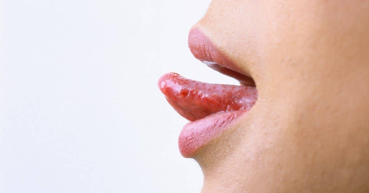 герпес языка