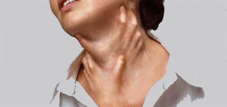 Чувство удушья и ком в горле при патологиях щитовидной железы