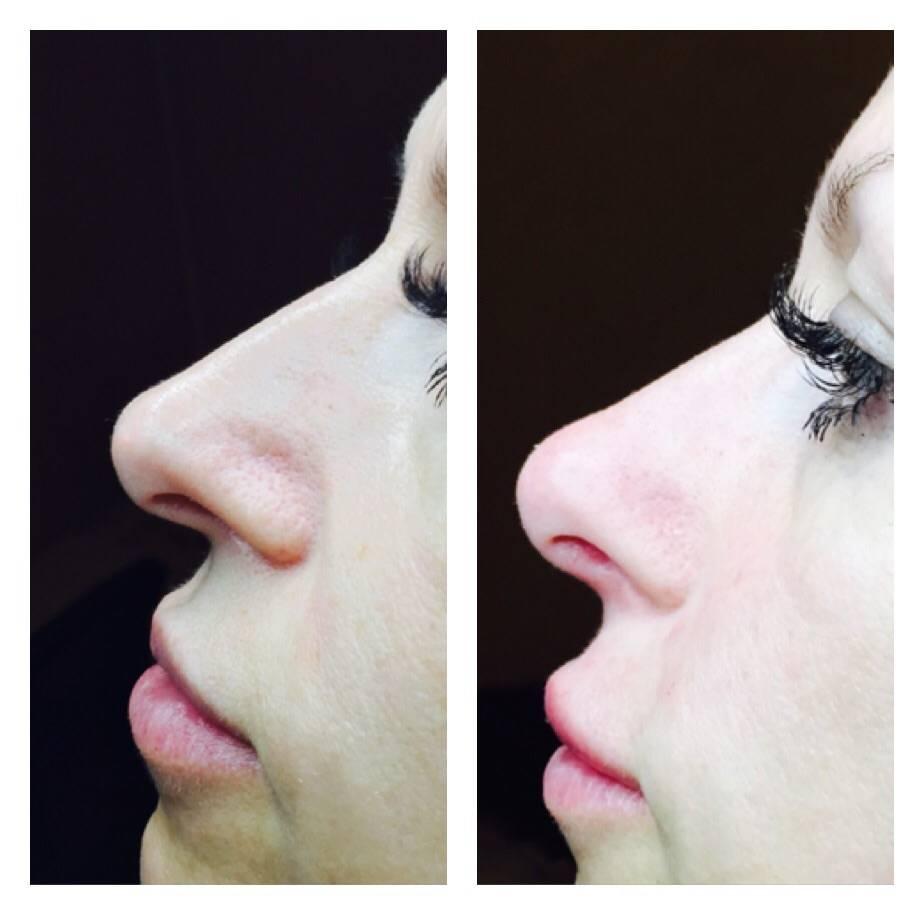 можно ли исправить форму носа без операции
