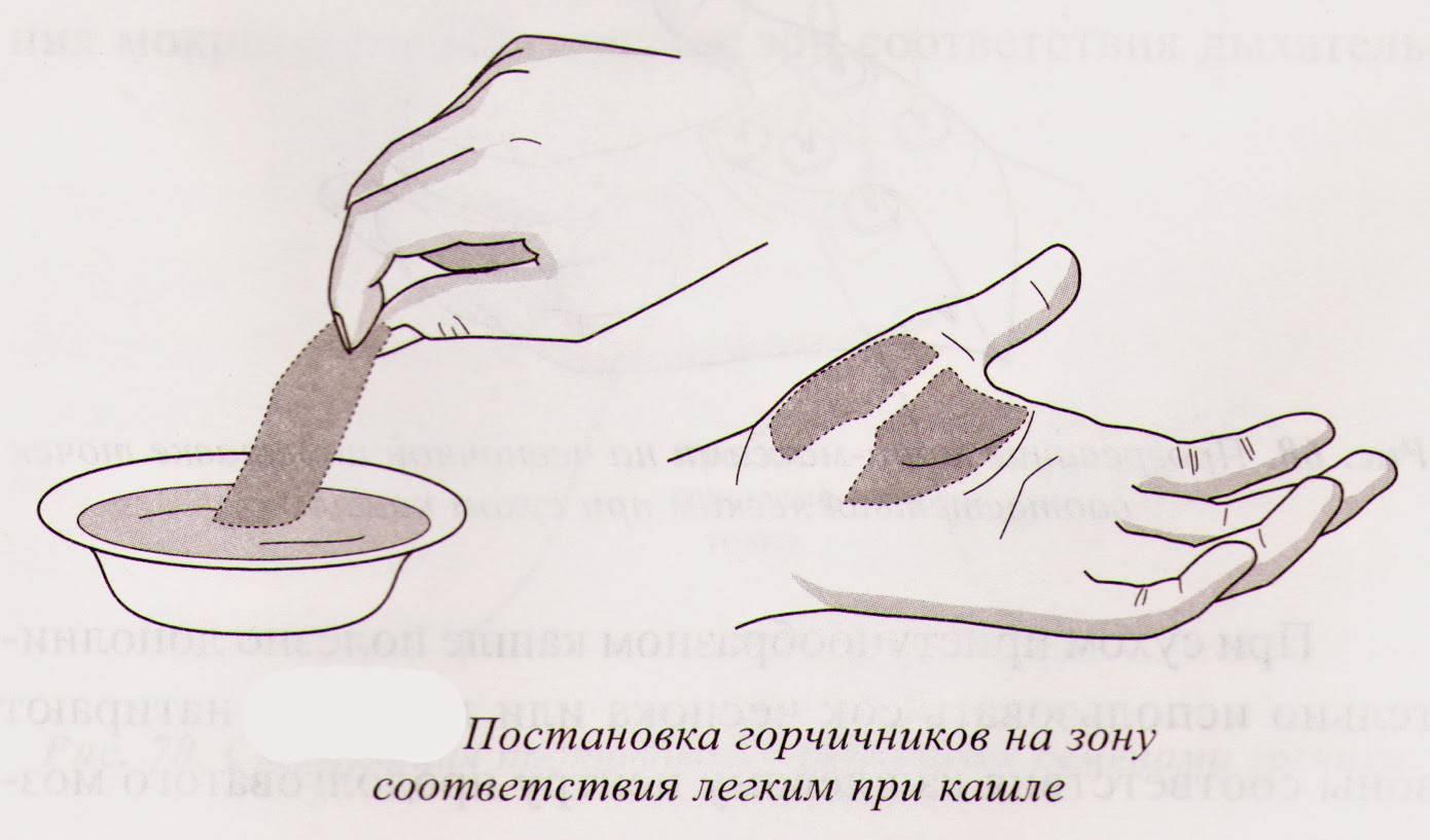 Как правильно ставить горчичники на грудь, спину и ноги при сухом и влажном кашле