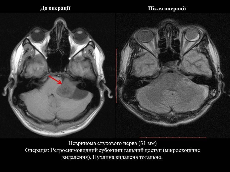 Что такое невринома головного мозга