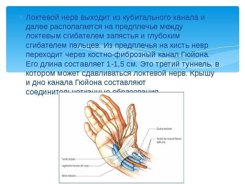 Что такое нейропатия локтевого нерва