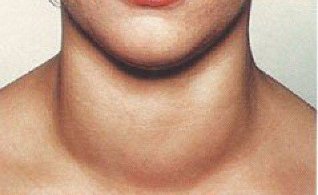Первые симптомы болезни щитовидной железы у мужчин, методы лечения