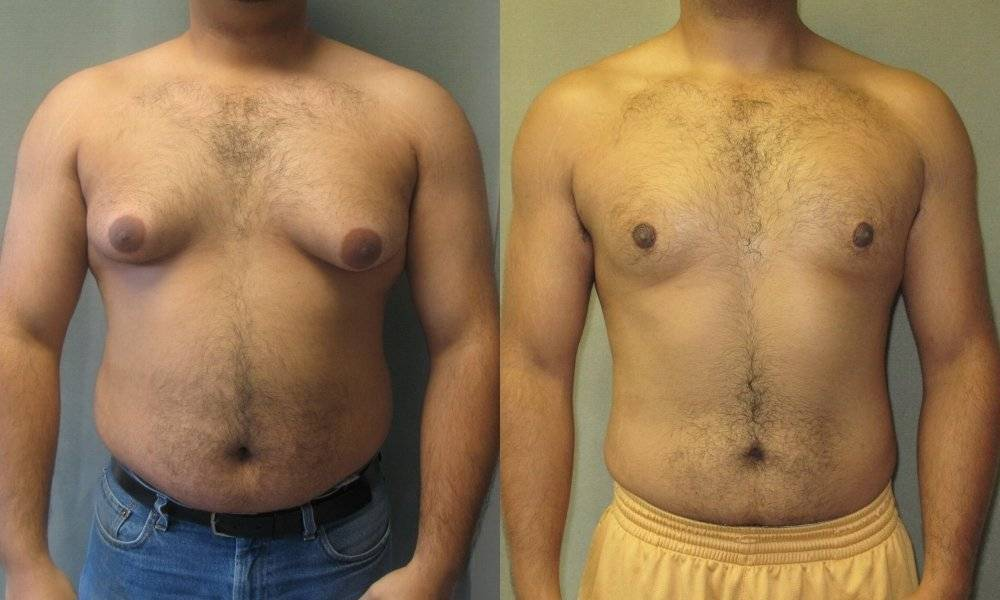 мастопатия у мужчин симптомы