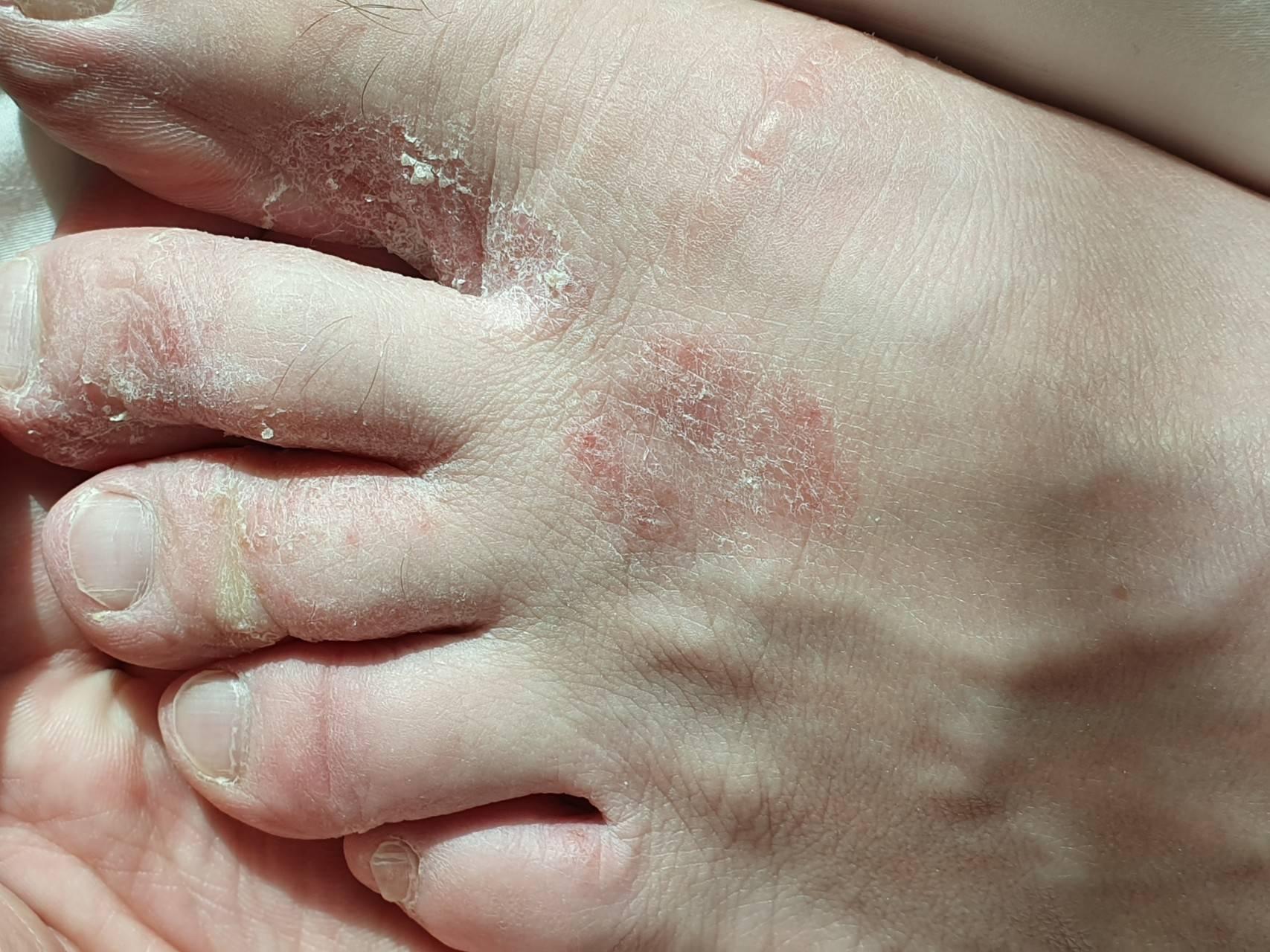Как отличить себорею от псориаза