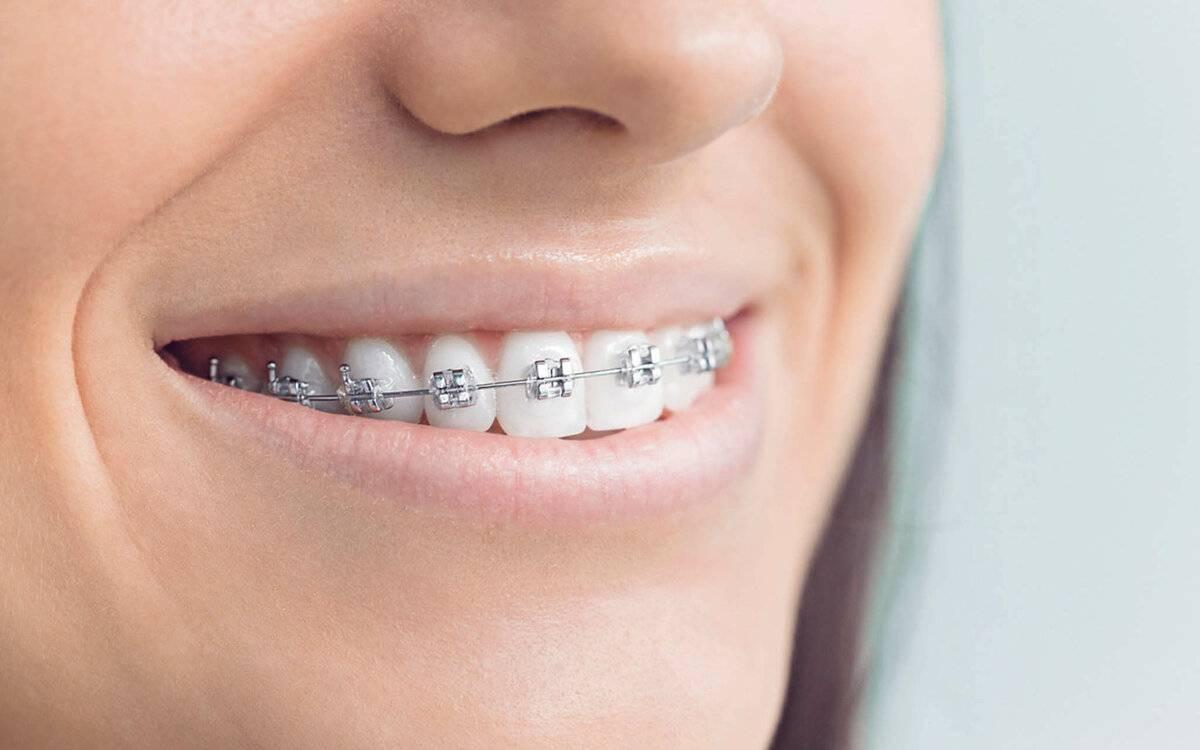 как брекеты меняют зубы