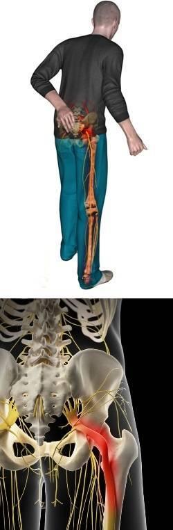 Защемление седалищного нерва — чем лечить?