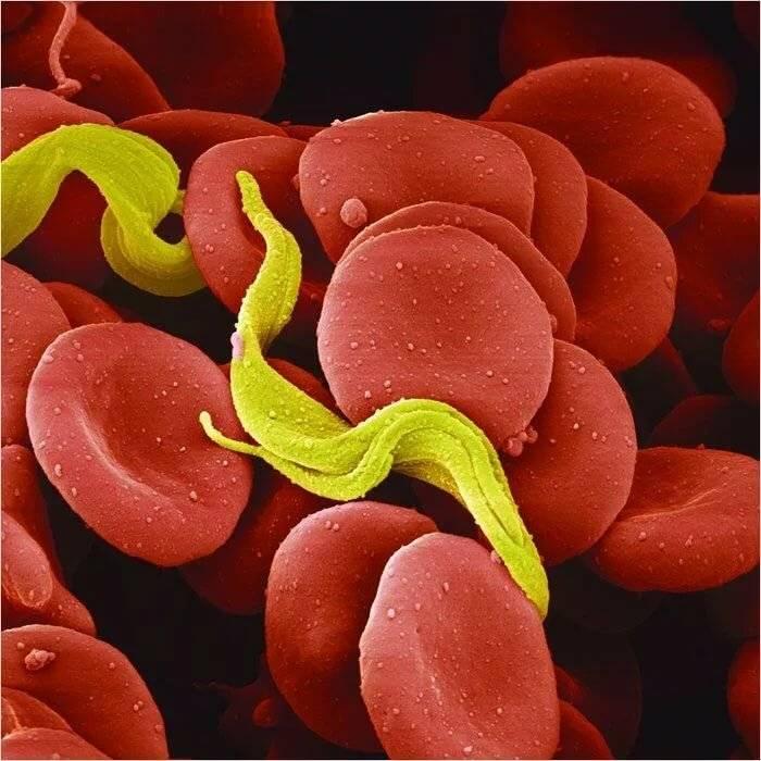 гельминты в крови человека