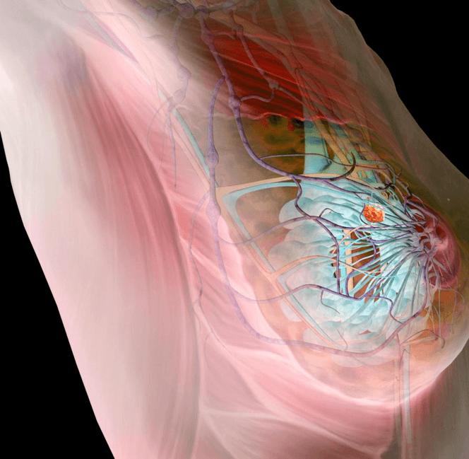 Дисгормональные дисплазии молочных желез