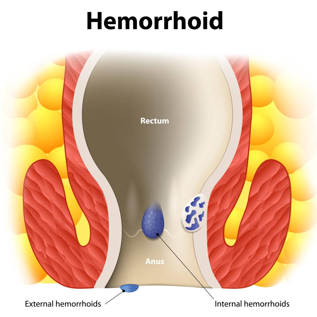 Лечение острого тромбоза наружных и внутренних геморроидальных узлов