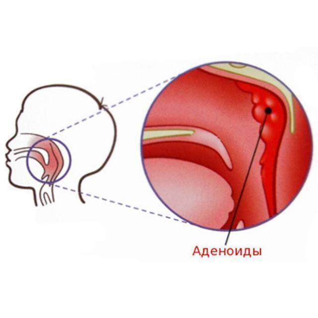Острый и хронический аденоидит – симптомы, лечение, аденоидит у детей — симптомы