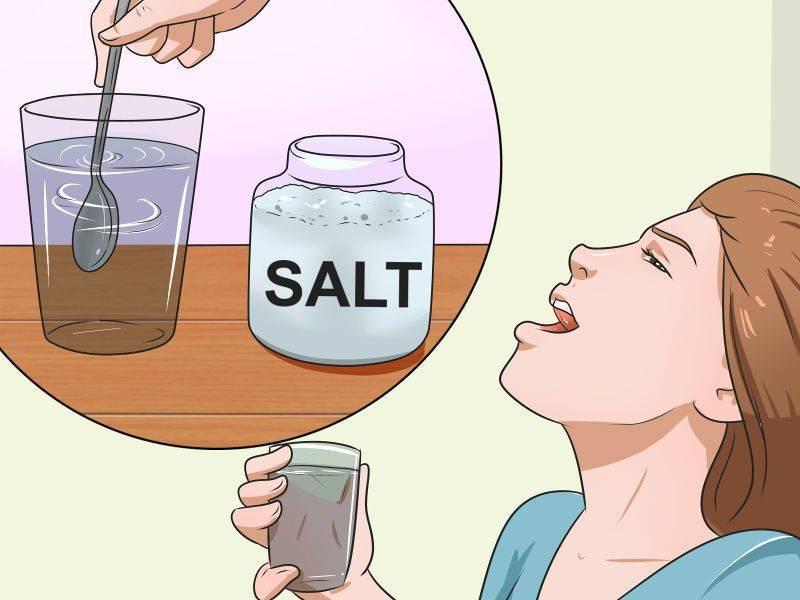 Как полоскать горло содой? пропорции. солью и йодом. полное описание