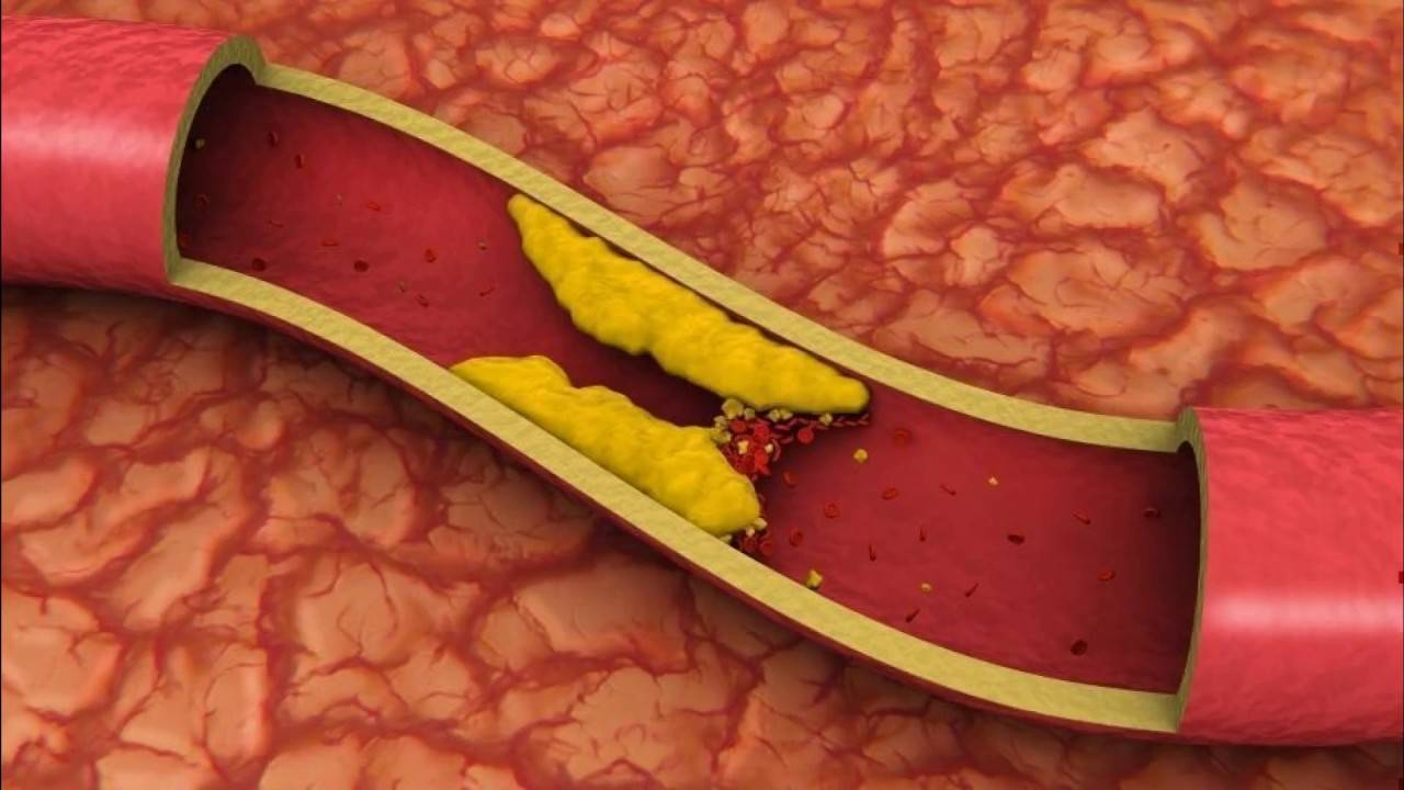 как опасен повышенный холестерин в крови