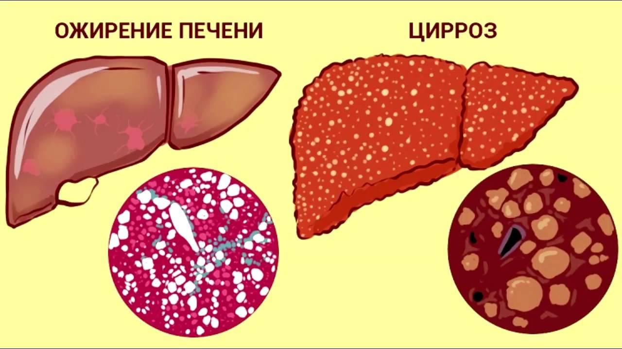 Ожирение печени: что это такое, можно ли вылечить, чем опасно, диета — симптомы