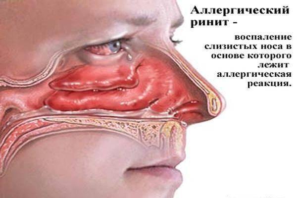 Аллергический ринит у ребенка: симптомы, индивидуальная программа комплексного лечения, прогноз