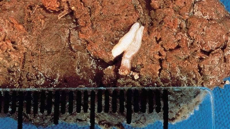 как выглядят яйца глистов в кале
