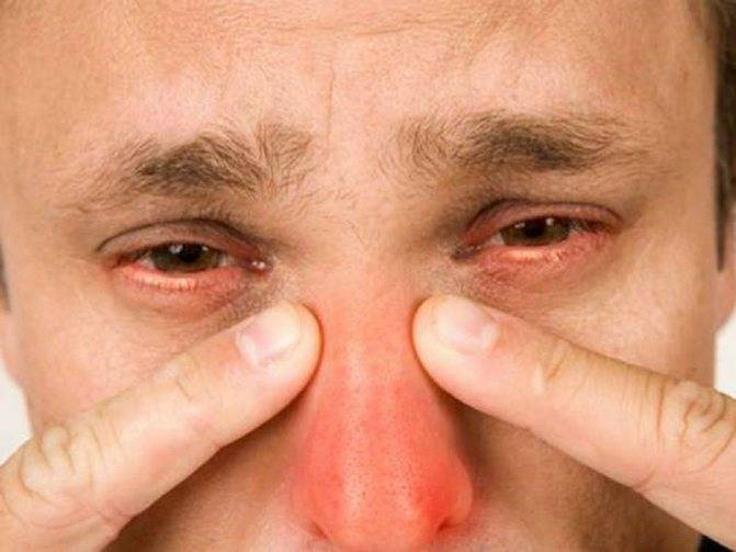 жжение в носу при дыхании