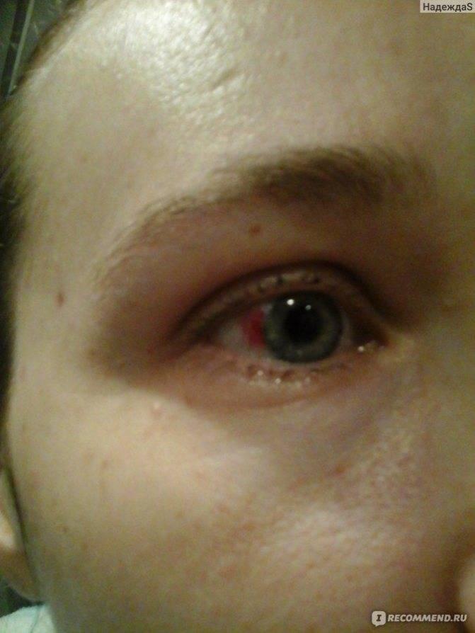 у новорожденного лопнул капилляр в глазу
