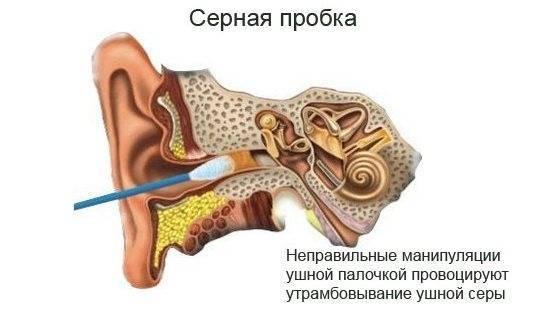 Заложило ухо и болит: причины и лечение