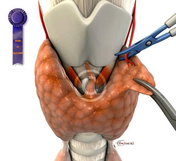 Операция на щитовидке - показания, подготовка и технология проведения, реабилитация и осложнения