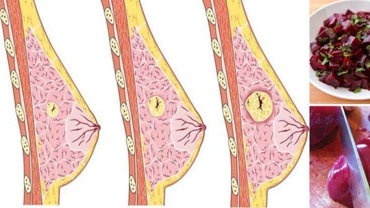 кисты в молочных железах лечение народными средствами