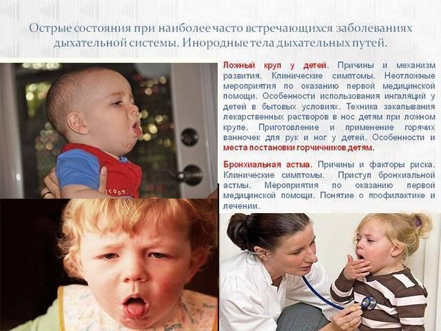 первая помощь при крупе у детей