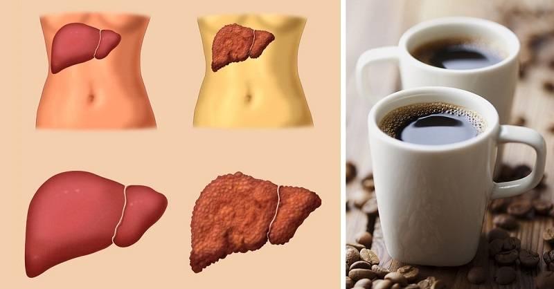 можно ли пить кофе при болезни печени