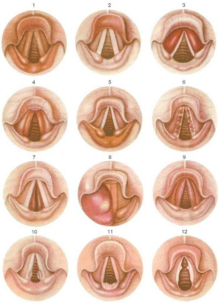 Чем лечить ларингит в 1, 2 и 3 триместре беременности, какие бывают последствия
