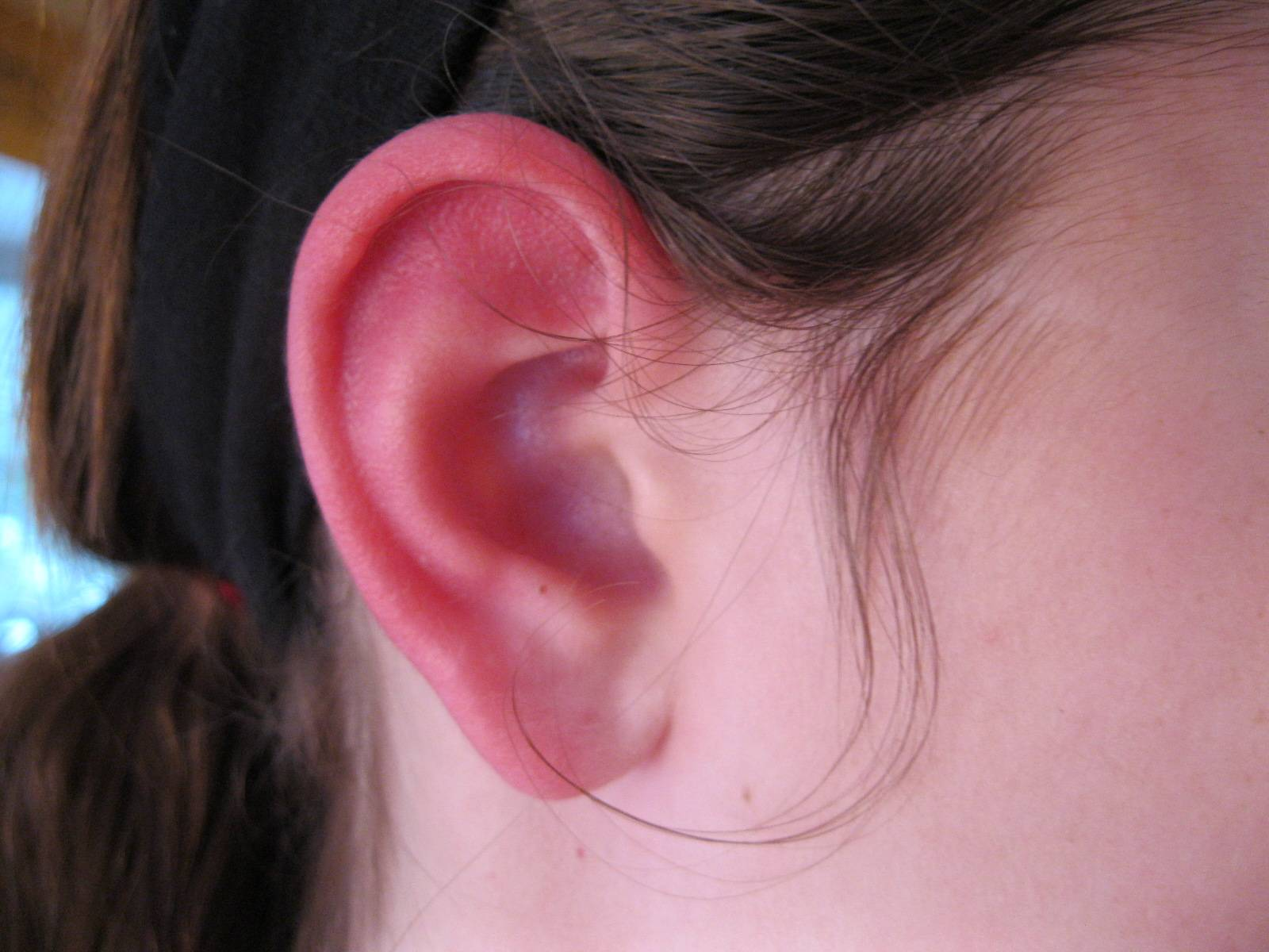 У ребёнка опухли и покраснели уши: что это может значить - возможные причины