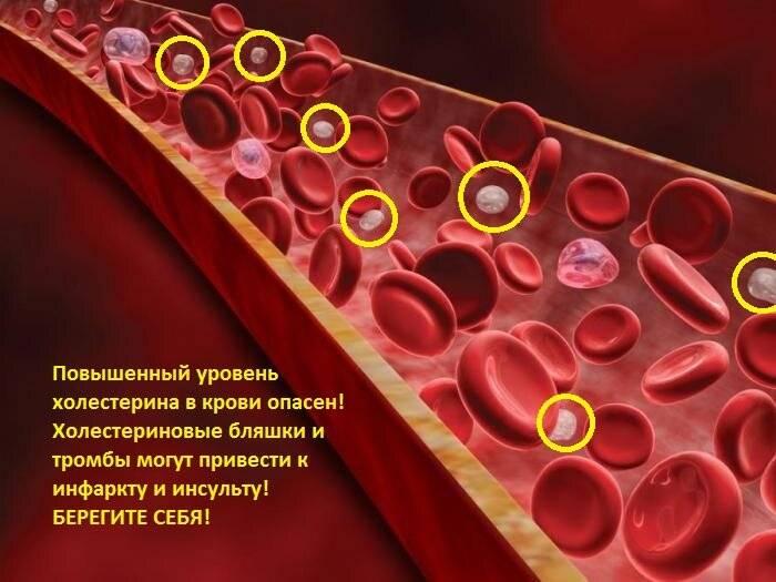 Что означает низкий холестерин в крови симптомы