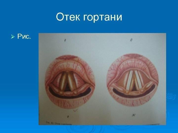 Отек гортани: каковы симптомы и лечение?