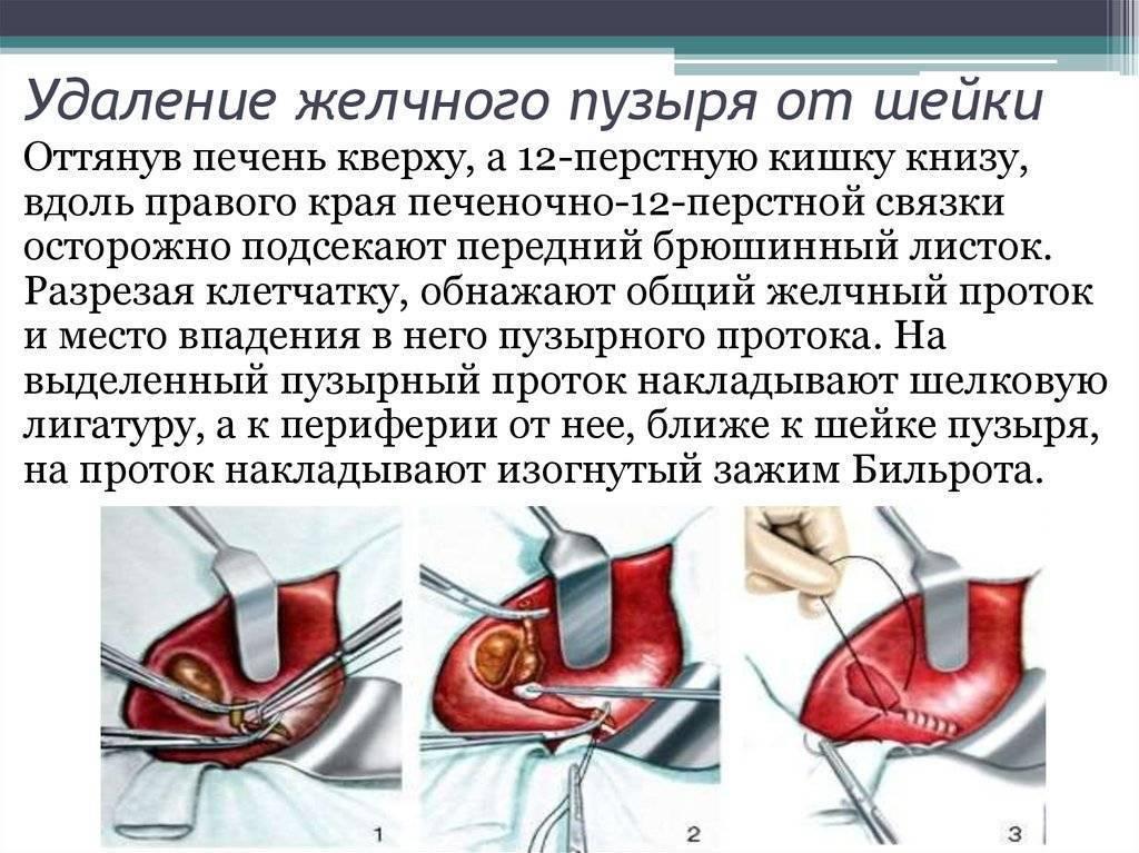Расторопша в медицине: лечение болезней печени, почек, желчного, желудка, поджелудочной