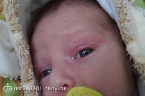 Веко покраснело - у ребенка красное веко - запись пользователя ann (dream7) в дневнике - babyblog.ru