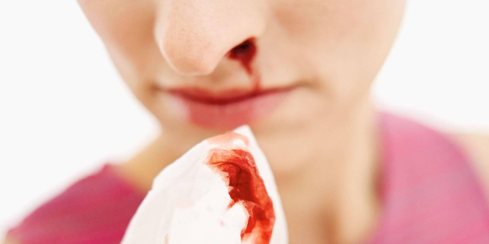 что означает кровь из носа