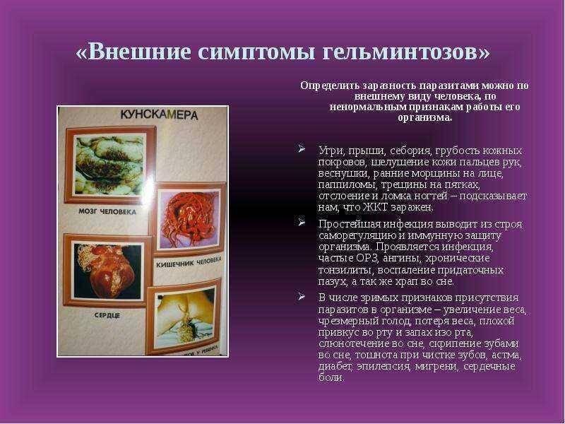Глисты у детей. глистная инвазия у детей: симптомы, лечение, профилактика.