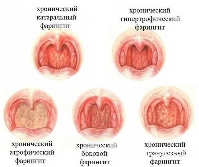 болезнь горла фарингит