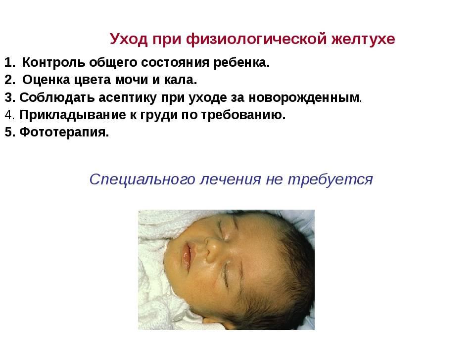 Через сколько проходит и сколько держится желтушка у новорожденных